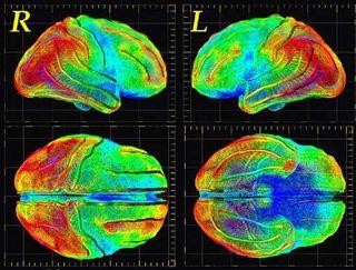 Brain_images
